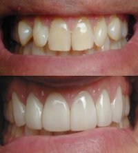 Click here for teeth bleaching,extreme makeover,new york city cosmetic dentistry,NYC Dentist,new york cosmetic dentist and new york dentist