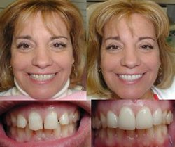 Click here for teeth whitening,britesmile,manhattan dentist,new york smile makeover,teeth bleaching and extreme makeover