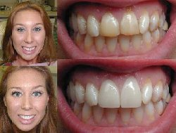 Click here for perfect smile,porcelain veneers,smile makeover,new york teeth whitening,dental implants ny and invisible braces