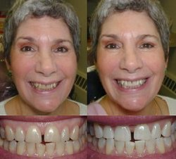Click here for dental implants ny,invisible braces,porcelain laminates,dental implants,teeth whitening and britesmile